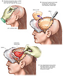 Surgical Repair of Subdural Hematoma.