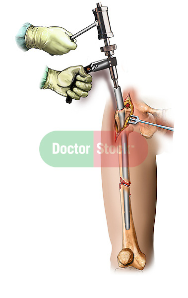 Intramedullary Rod Placement; this medical illustration illustrates intramedullary rod insertion step in a tibial fixation.
