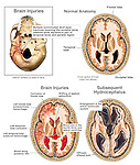 Traumatic Brain Injury. This full color medical exhibit depicts injuries to the skull and brain. The exhibit consists of four images. The first shows fractures of the inferior (bottom) of the skull. The second image shows a cross section through a normal brain. The third image shows injuries to the brain. The final image shows subsequent hydrocephalus of the brain.