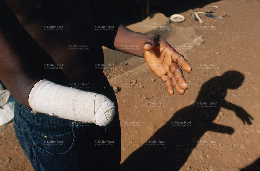 Sierra Leone. Freetown. Amputees camp. A man had his right hand cut off by the RUF (Revolutionary United Front) rebels during the war. © 2002 Didier Ruef