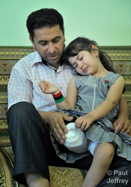 Five-year old Malake Ashama lost her leg when a Grad rocket fired by government forces slammed into her home in the rebel enclave of Misrata, Libya.  The May 13 blast also killed a brother and sister. Her father Mostfa here comforts the girl, who remains traumatized by the event.