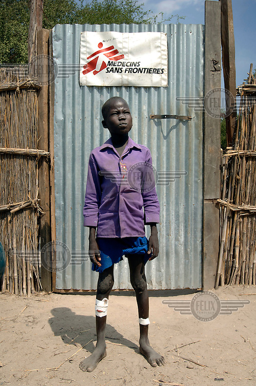 A boy with a leg injury stands outside a Medecins sans Frontieres (MSF) compound after having his wounds dressed.