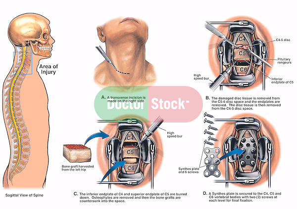 Neck Surgery - C4-5,  C5-6 Disc Herniations with Discectomy (Diskectomy) and Spinal Fusion. Surgical steps: 1. A transverse incision on the right side of the neck; 2. Surgically removing the C4-5 disc material while burring away the C5-6 vertebral body endplates in preparation for a hip bone graft; 3. Counter-sinking the hip bone graft in the C4-5 and C5-6 interspaces; and 4. Placing the spinal fusion synthes plate using six screws.