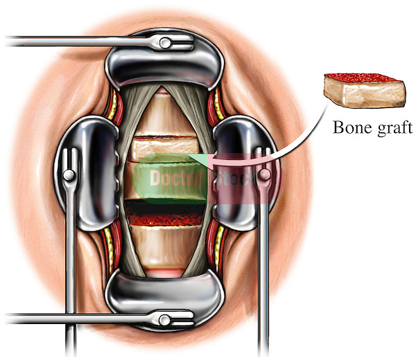 Spinal Surgery Step - Placement of Bone Graft for Cervical Fusion. Depicts a bone graft being placed into an open incision for a two-level anterior cervical fusion. The upper intervertebral space is receiving a bone graft while the lower intervertebral space is decompressed and clear of any disc material. Retractors are shown exposing the cervical vertebrae and intervertebral spaces. The bone graft is  rectangular in shape representative of a Smith-Robinson anterior cervical fusion procedure.
