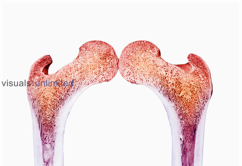 Upper right and left human femur bone sectioned