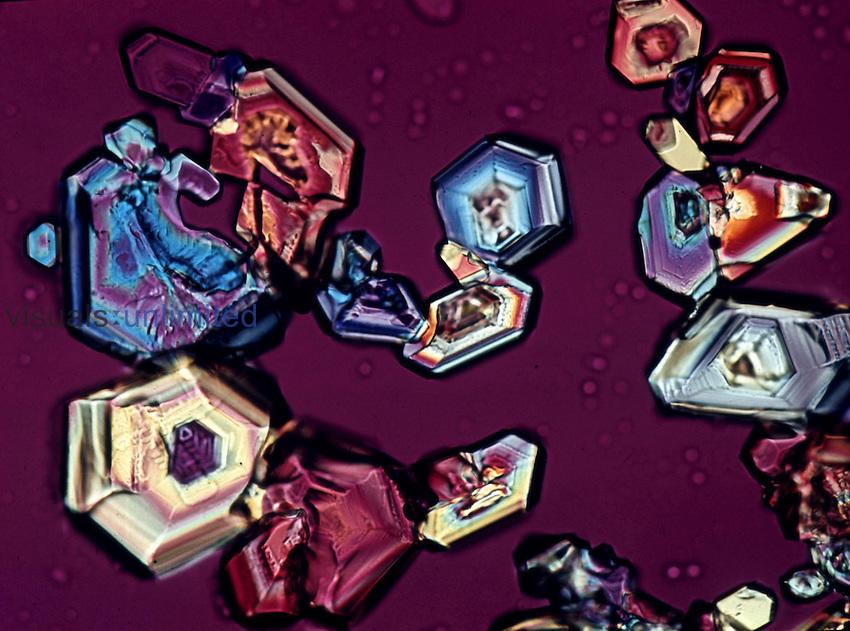 Progesterone crystals. Polarized, LM X160