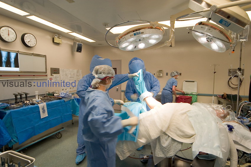 An orthopedic operating room.  The two orthopedic assistants, wearing special gowns, are preparing the patient for a total knee replacement.  They are getting ready for the surgeon to being the case.  The assistants are applying a sterile stockinette to the patient.
