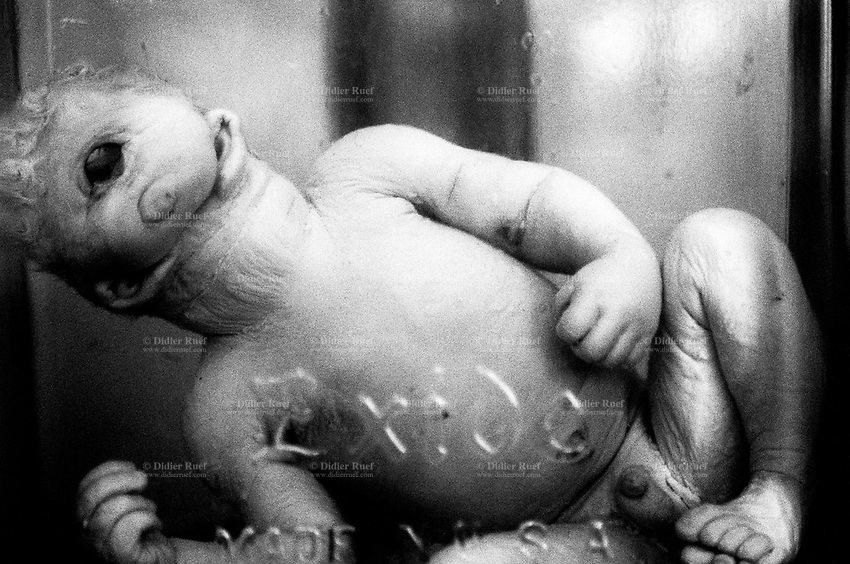 Kazakhstan. Semipalatinsk. Semey State Medical Academy. Dead foetus. A cyclops with a single eye in the middle of its forehead and no mouth. Congenital anomalies of the development of the central nervous system due to atom testing. The dead child was conceived near the Semipalatinsk Polygon ( called today National Nuclear Center of Kazakhstan) and is a victim of the 456 atomic testing - 116 atmospheric, 340 underground - from 1949 to 1989. The regions high frequency of congenital anomalies is primarily due to fallout from nearby nuclear test sites. The foetus's death is the human and environmental effects of nuclear radiation, genetic contamination and pollution from atomic tests programs of the former Soviet Union. Semey is the kazak name for Semipalatinsk and is located in the Eastern Kazakhstan Province. © 2008 Didier Ruef ..