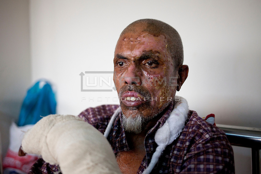 Meyar Mia, 45, Truck driver, receives treatment at a medical college hospital after being injured in a recent bomb attack during the ongoing nationwide blockade called by the opposition Bangladesh Nationalist Party (BNP), in Dhaka, Bangladesh, Sunday, Jan. 18, 2015.