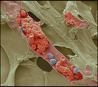 BNPS.co.uk (01202) 558833<br /> Picture: RPS/Steve Gschmeissner<br /> <br /> **please use full byline/single use only**<br /> <br /> Coloured scanning electron micrograph showing red and white blood cells inside a small blood vessel by Steve Gschmeissner, Bedfordshire. The sample was prepared by freeze fracturing, rapidly freezing the sample with liquid nitrogen such that tissues are instantly preserved. If the sample is broken, the inner structures are revealed. In this frame, a tiny vein, or venule, has been opened to show the blood cells inside.<br /> <br /> Stunning photographs from the prestigious Royal Photographic Society's latest exhibition prove that science and beauty can co-exist. There 100 sensational images come from various disciplines of science and highlight how important photography is for academics. Photography plays a crucial role in medicine, forensic science, engineering, archaeology, oceanography, natural history and many more areas. The International Images for Science exhibition launches at the Great North Museum in Hancock, Newcastle, tomorrow (Sat), and showcases works from 54 scientists from around the world.