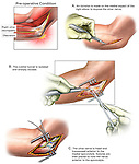 Elbow Joint Surgery - Ulnar Nerve Injury with Transposition Surgery. This medical illustration series pictures the elbow anatomy revealing scarring, compression and entrapment of the ulnar nerve within the cubital tunnel. Added surgical images reveal the incision intro the elbow, freeing up of the nerve, and transposition of the nerve to protect it from future entrapment.
