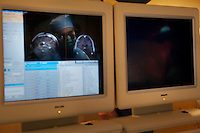 San Francisco, California, January 6, 2011 - A reflection of University of California San Francisco neurologist Dr. Philip Starr MD, PhD as he reviews real time scans of patient Linda Sharpe during an iMRI surgery at University of California San Francisco Medical Center while. The MRI machine photographs the patient during the surgery allowing the doctors operating to view the procedure as well as support doctors and technicians to monitor from an outside room.  The iMRI procedure uses Deep brain stimulation (DBS), which has been used for over a decade to treat movement disorders such as Parkinson's disease, essential tremor, and dystonia. DBS uses a pulse generator implanted in the chest, similar to a pacemaker, to deliver pulses to specific regions of the brain via a permanently implanted electrode. In the U.S., DBS is normally done while the patient is awake, because the surgeon needs to induce the symptoms (like the involuntary movements of Parkinson's) to know if he's in the right place, and if the patient is unconscious, the symptoms can't be induced. Many patients find it hard to tolerate. Their head is clamped in a frame, they're aware of their surroundings, and the surgeon is deliberately producing tremors and twitches while they lie there...Interventional MRI (or iMRI) allows surgeons to implant these electrodes while the patient is unconscious taking advantage of MR imaging in real time by performing procedures inside the scanner itself. Doctors Paul Larson MD, and Philip Starr MD, PhD were both involved with this technology during its development in the 1990s. In 2002 they began to think about how to perform DBS using this technique at UCSF. Working with Alastair Martin PhD in the Department of Radiology, Jill Ostrem MD in the Department of Neurology, and others, they developed a technique of implantation using a modified but commercially available skull-mounted aiming device and custom-made, MR-compatible surgical instruments. In 2008, Larson, Starr, an
