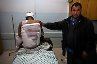 Khan Younes, Gaza Strip, Jan 12 2009.Naser Hospital, Mohamed Ahmed, 17, was in his field behind his house in Garara when he saw white smoke coming from the sky and was instantly burned over 35% of his body. Doctors categorically declare that he suffers from deep chemical burns, NOT heat exposure. Chemical weapons use in a civilian area constitute a war crime according to the Geneva convention.
