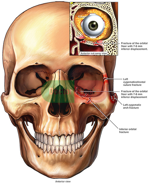 This Full Color Medical Illustration Pictures An Anterior (front) View Of  The Skull With