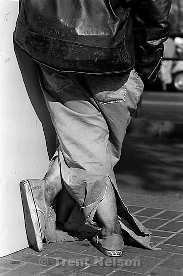 Homeless man's legs<br />