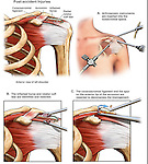 This custom medical exhibit reveals surgical steps from a typical arthroscopic left shoulder decompression. Images include: 1. Pre-operative condition, 2. Insertion of arthroscopic instruments into the shoulder joint, 3. Excision of inflamed bursa, 4. Final excision of the acromion undersurface releasing impingement.