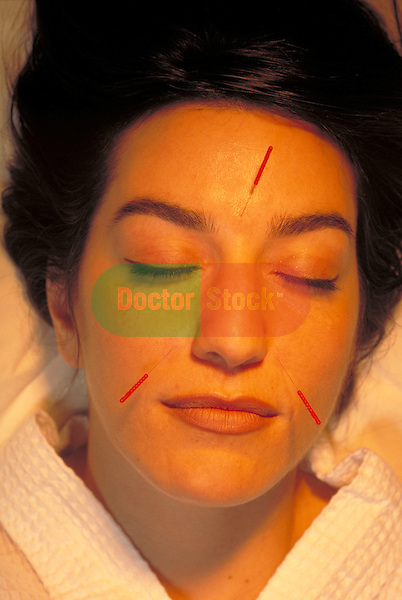 female patient relaxing with acupuncture needles in face
