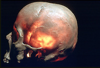Illumuminated skull to show weak bony areas. This image may only be used to portray the subject in a positive manner..©shoutpictures.com..john@shoutpictures.com