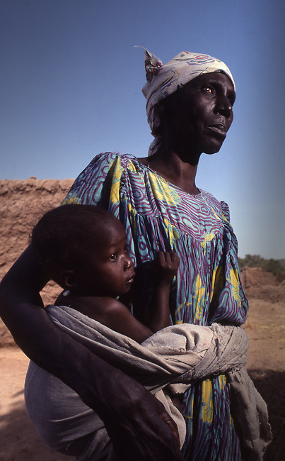 "Mali, Africa, woman blind from ""river blindness"" caused by mosquitos. Onchocerciasis."