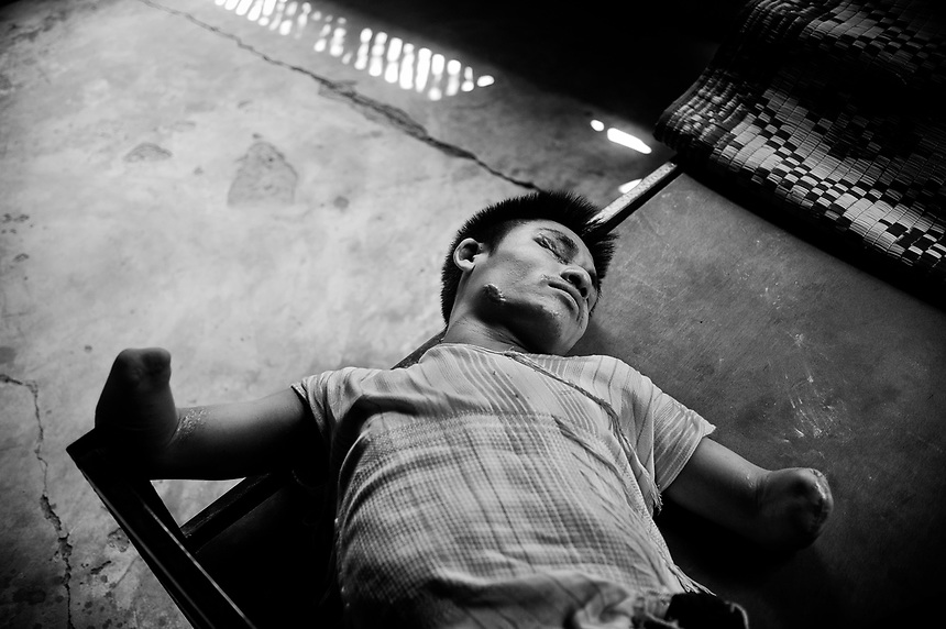 A landmine victim that was injured while serving as soldier for the KNU's military wing, Karen National Liberation Army, rests at Care Villa located in Thai Mae La refugee camp.