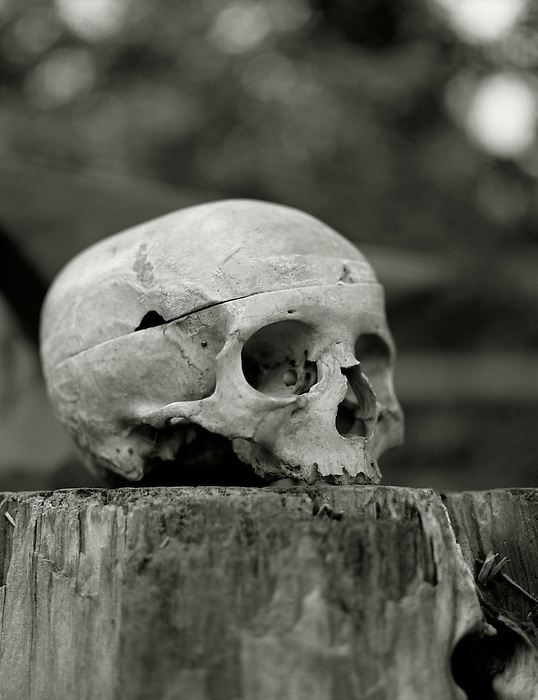 A human skull resting on a wooden chopping block.