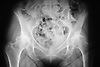 X Ray of the hip area,