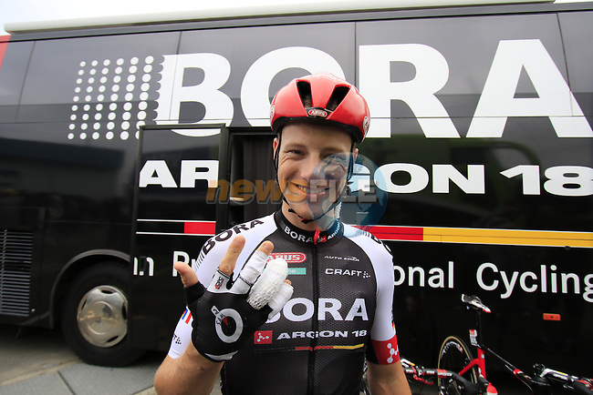Sam Bennett (IRL) Bora-Argon 18 shows his injuries from the previous stage outside the team bus before the start of Stage 3 of the 2016 Tour de France, running 223.5km from Granville to Angers, France . 4th July 2016.<br /> Picture: Eoin Clarke | Newsfile<br /> <br /> <br /> All photos usage must carry mandatory copyright credit (&copy; Newsfile | Eoin Clarke)