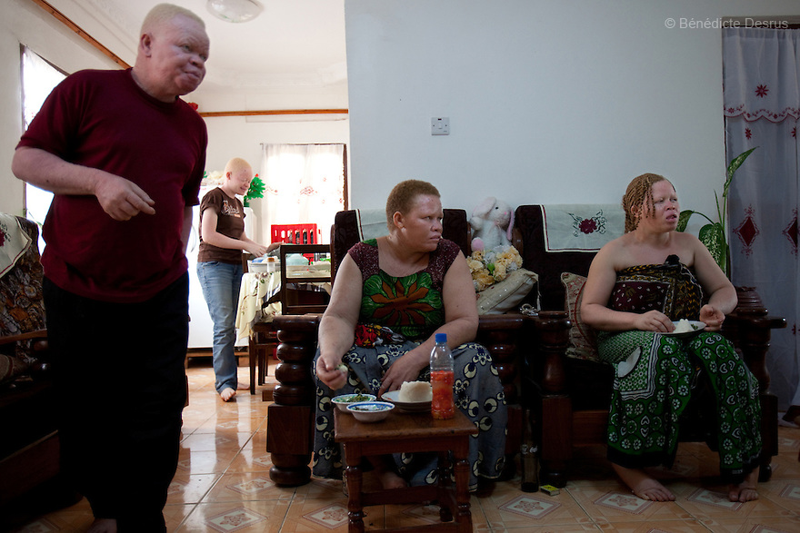 10 june 2010 - Dar Es Salaam, Tanzania - Samuel Herman Mluge (51yrs) an albino rights activist in Dar Es Salaam, Tanzania and his wife Teresa January (46 yrs) have five children, all with albinism. Albinism is a recessive gene but when two carriers of the gene have a child it has a one in four chance of getting albinism. Tanzania is believed to have Africa' s largest population of albinos, a genetic condition caused by a lack of melanin in the skin, eyes and hair and has an incidence seven times higher than elsewhere in the world. Over the last three years people with albinism have been threatened by an alarming increase in the criminal trade of Albino body parts. At least 53 albinos have been killed since 2007, some as young as six months old. Many more have been attacked with machetes and their limbs stolen while they are still alive. Witch doctors tell their clients that the body parts will bring them luck in love, life and business. The belief that albino body parts have magical powers has driven thousands of Africa's albinos into hiding, fearful of losing their lives and limbs to unscrupulous dealers who can make up to US$75,000 selling a complete dismembered set. The killings have now spread to neighbouring countries, like Kenya, Uganda and Burundi and an international market for albino body parts has been rumoured to reach as far as West Africa. Photo credit: Benedicte Desrus