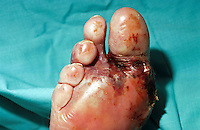 Diabetic gangrene toes. This image may only be used to portray the subject in a positive manner..©shoutpictures.com..john@shoutpictures.com