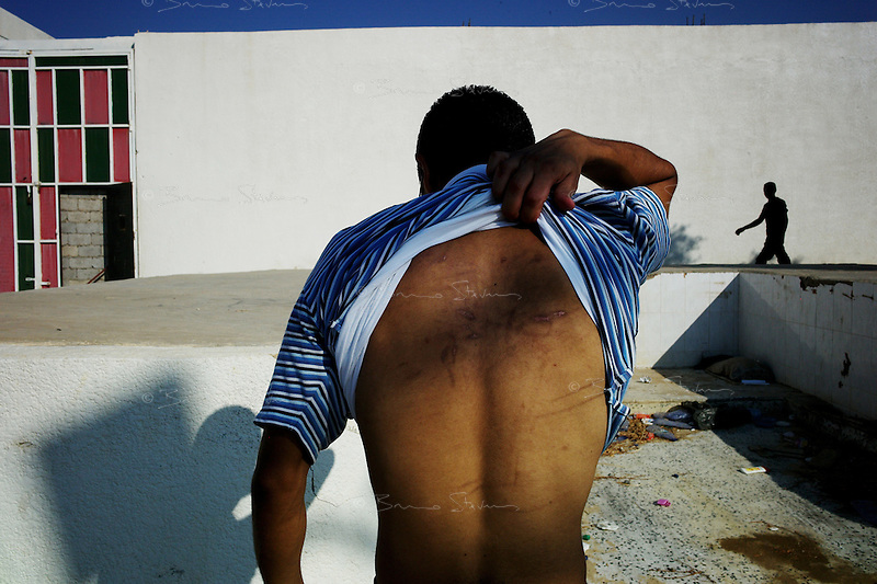 Tripoli, Libya, August 26, 2011.Mohammed Ibrahim, 31, was tortured for five days by the police before being brought to Abu Salim prison.  The fall of Khaddafi's regime also meant freedom for thousands of prisoners inside the sinister Abu Salim prison...