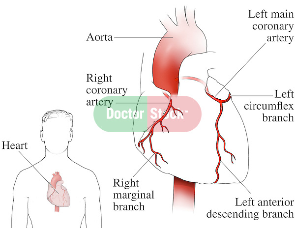 Heart and Coronary Arteries.