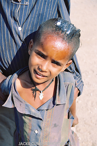 "It is often asked of this photo ""What is that in his hair?""  Ethiopian villagers sometimes dress their hair with a type of butter. Men usually have short, cropped hair, while women and children often style their hair in creative designs with rows of tiny plaits or shaving parts of the scalp."