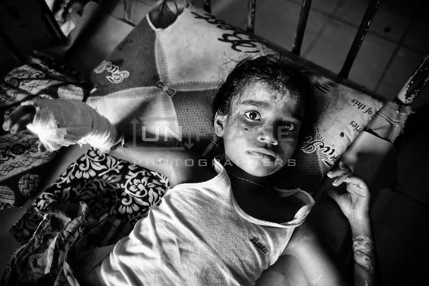 8 years old Shumi from Durgapur, Netrokona. Shumi and her Grandmother burnt badly when supporters of Nationwide blockage torched the bus at Gazipur. They are on the way to Dhaka to visit Shumi's mother house. Dhaka, Bangladesh