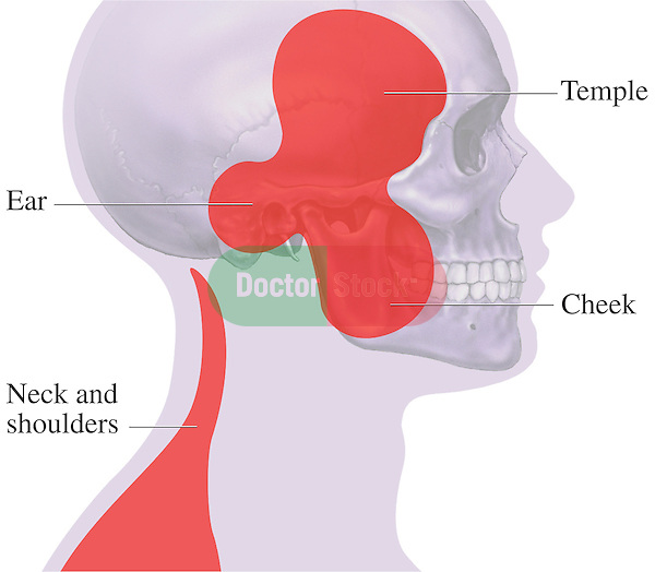 This medical exhibit pictures the primary regions of pain associated with injury or dysfunction of the temporomandibular joint (TMJ). It features a right lateral (side) silhouette view of a generic head and neck with the skull ghosted within. Large areas of red color and labels designate the areas of pain in the temple, ear, cheek, neck and shoulders.