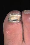 Tinea is a fungal infection of the nail plate, usually caused by a species of Epidermophyton, Microsporum, or Trichophyton, and producing opaque, white, thickened, friable, and brittle nails.