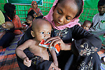 Shortly after they made the perilous crossing from Myanmar into Bangladesh, a woman feeds her child in a United Nations clinic for severely malnourished Rohingya children in the Balukhali Refugee Camp near Cox's Bazar, Bangladesh. She is using Plumpy'nut, a peanut-based supplement given to malnourished children. <br /> <br /> More than 600,000 Rohingya have fled government-sanctioned violence in Myanmar for safety in Bangladesh.