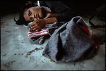 Cambodian refugee, Ban Lham, Thailand, November 1979.