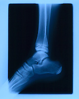 X-RAY OF HUMAN ANKLE<br />