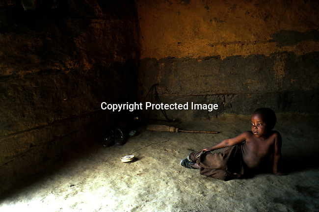 Siwe Shenge, 5 years old on November 26, 2000 is  infected by HIV in the Shenge family's one-room shack in Nqbeni, South Africa. His mother and an older daughter are also infected . His father died of Aids in 1997..(Photo: Per-Anders Pettersson/ Liaison Agency)