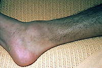 An ankle ( pott's ) fracture. The common low boot injury. It is a fracture of the fibula near the ankle. It is also called Dupuytren's fracture. This image may only be used to portray the subject in a positive manner..©shoutpictures.com..john@shoutpictures.com
