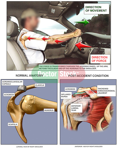 Mechanism of Shoulder Injury In Motor Vehicle Accident (MVA). The driver of the automobile is shown holding the steering wheel tightly with arms locked. Directional arrows show the impact force from the front end of the vehicle traveling through the arm to the shoulder joint, which absorbs the brunt of the trauma. Two views of the shoulder joint contrast normal anatomy with the typical post-accident injuries from a head-on impact.