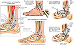Ankle Surgery - Instability with Surgical Reconstruction