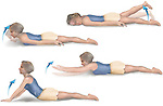 Ankylosing Spondylitis: Prone Hip Extensor Exercise. Depicts exercises to promote flexibility in the degenerative spine disease ankylosing spondylitis where the vertebral column fuses in place over time.