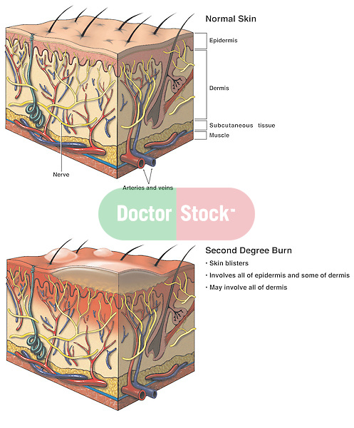Burns - Second Degree Burn Injury.