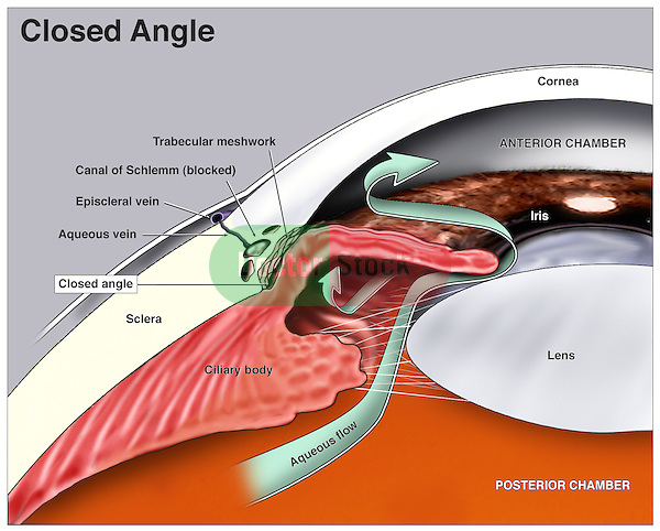 This medical illustration shows a cut-away view of the anatomical structures of the eye with labels indicating the cornea, sclera, iris, lens, and anterior and posterior chambers of the eye.