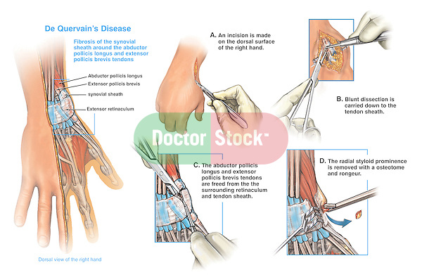 Accurately depicts De Quervain's disease (fibrosis of the synovial sheaths in the wrist) with surgical release. Labels: abductor pollicis longus muscle, extensor pollics brevis muscle, synovial tendon sheath and extensor retinaculum. Surgical steps: 1. Incision in the dorsal surface of the hand; 2. Blunt dissection down to the tendon sheath; 3. Abductor pollicis and extensor pollicis muscles are released from the fibrous retinaculum; and 4. Radial styloid prominence is removed.