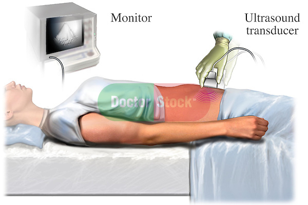 This medical illustration depicts a pelvic ultrasound test, like that typically used during early pregnancy tests.