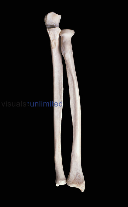 Articulated right radius and ulna from front. Upper limb bones.