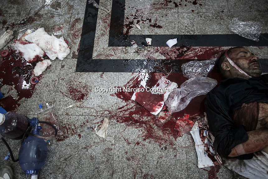 In this Wednesday, Aug. 14, 2013 photo, a dead body lays on the floor of the field hospital during clashes between supporters of the ousted president Mohammed Morsi with security forces in streets around Al-Raba'a Alawya mosque in the Nasr district of Cairo. (Photo/Narciso Contreras).