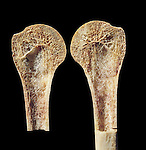 Section through the upper (proximal) end of the human humerus or arm bone that forms part of the shoulder joint. The bone has been sectioned to show the trabeculae that form the internal supportive structure of long bones. In old age, the density of trabeculae decreases (osteoporosis) and bones become vulnerable to fracture. The ends of long bones that are filled with trabeculae are called spongy or cancellous bone, and the outside is called compact bone.